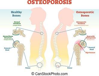 density., abbildung, diagramm, vektor, beispiele, knochen, osteoporose