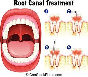 dental, vektor, kanal, wurzel, behandlung
