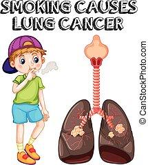 Der Junge raucht Zigaretten und Lungenkrebs.