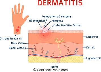 Dermatitis Grafik-Diagramm oder Schema flachen Stil