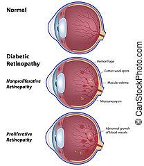 Diabetische Retinopathie, Eps8