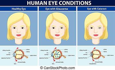 diagramm, auge, ausstellung, krankheit, menschliche
