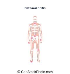 diagramm, illustration., osteoarthritis, vektor, wohnung, schaden, gelenk, koerper