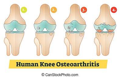 diagramm, knie, osteoarthritis, menschliche , abbildung