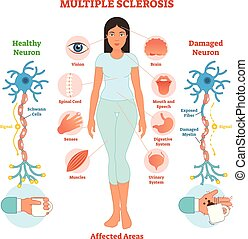 diagramm, mehrfach, medizin, sklerose, abbildung, anatomisch, vektor, scheme.