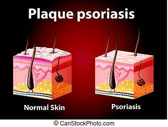 diagramm, psoriasis, ausstellung, platte