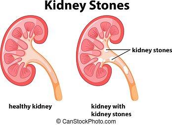 diagramm, steine, niere