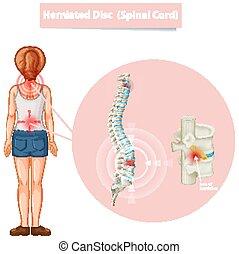 diagramm, vorgestanden abnormale körperöffnung, ausstellung, scheibe