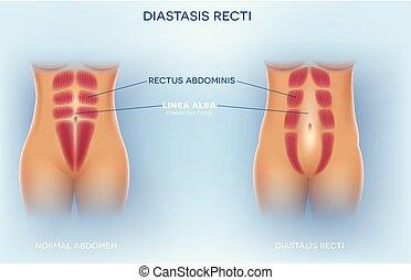 diastasis, recti, abdominal, oder, trennung