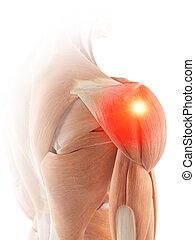 Die Schultermuskeln zeigen Schmerzen.