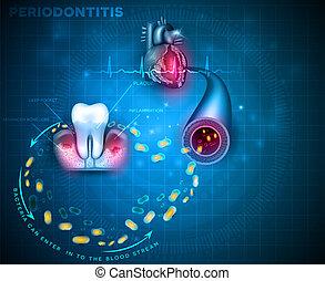 Die Zahnfleischentzündung verursacht Herzprobleme