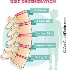 Disk Degeneration Flachbild-Vektordiagramm