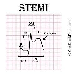 ECG of ST myocardial infarction ( STEMI ) and details of ECG ( P wave , PR Segment , PR-Intervall , QRS complex , QT Intervall , ST elevate , T wave ) Acute coronarySyndrom , angina pectoris.