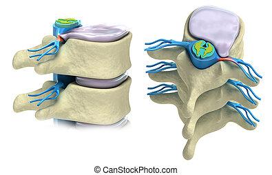 Ein Überlappung von intervertebraler Disk