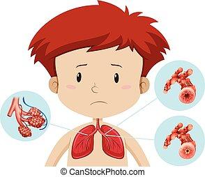 Ein Junge mit Bronchitis.