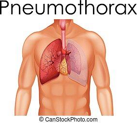 Eine menschliche Anatomie von Pneumothorax.