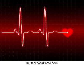 EKG Nummer 2