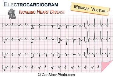 Elektrocardiogramm ( ECG , EKG ) der ischämischen Herzkrankheit ( Myokardinfarktion ) und Anatomie des Herzsymbols.