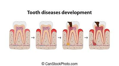 Entwicklung von Zahnkrankheiten medizinische Poster Illustration in flachem Design. Zähne in Zahnfleisch Icons isoliert auf weißem Hintergrund.