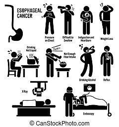 esophageal, speiseröhre, kehle krebs