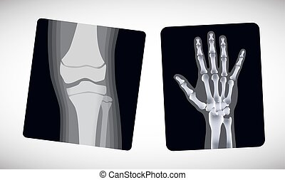 foot., vektor, röntgenaufnahme, hand