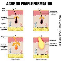 Formation der Haut Akne oder Pickel.