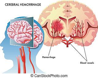 Gehirnblutung.