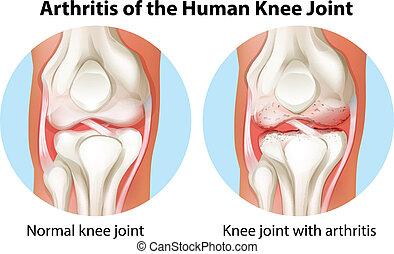 gelenk, arthritis, menschliches knie