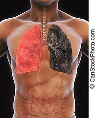 Gesunde Lunge und Raucher Lunge