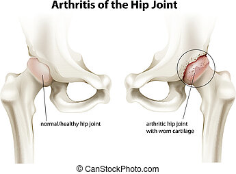 hüftgelenk, arthritis