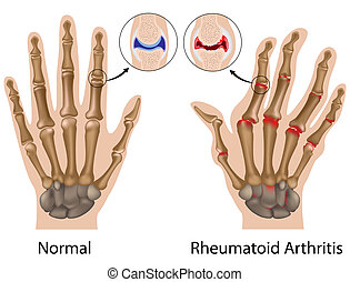 hand, arthritis, rheumatoid, eps8