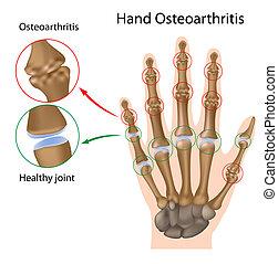 hand, osteoarthritis, eps8