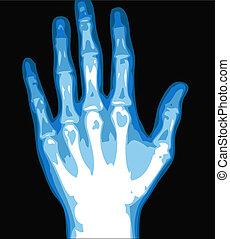 hand, xray