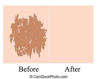 haut, fleck, face., pigmentation, pigmentiert, nach, hintergrund., treatment., abbildung, vektor, vorher