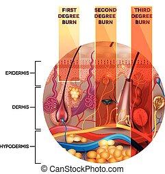 Hautverbrennung. Erste, zweite und dritte Hautverbrennungen