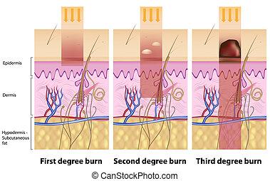 Hautverbrennungen, Eps8