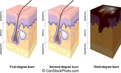 Hautverbrennungen gekennzeichnet