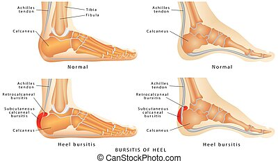 Heel Bursitis