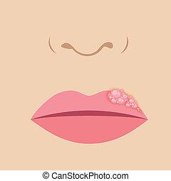 Herpes auf der Lippe.
