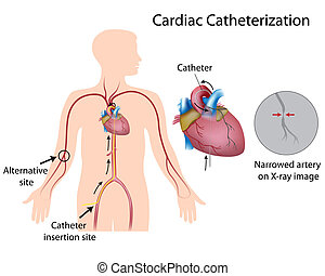 herz catheterization, eps10