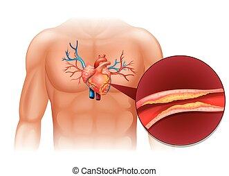 Herz Cholesterin im menschlichen Körper.