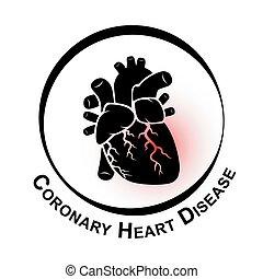herz, myokardial, bereich, ), (, symbol, krankheit, koronar, thrombus, rotes , übertretung, arterie, verschließen, ischemic