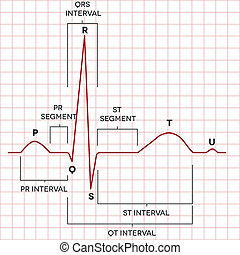 herz rhythmus, normal, menschliche , sinus, elektrokardiogramm