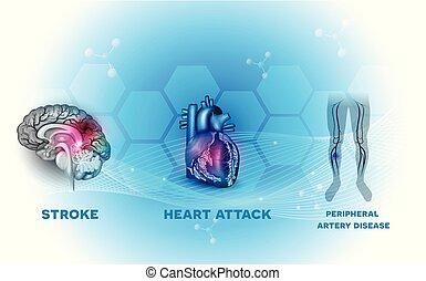 Herz- und Blutgefäßkrankheiten.