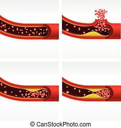 herz, zerebral, abschnitt, schlag, angriff, thrombosis, cholesterin, arterie