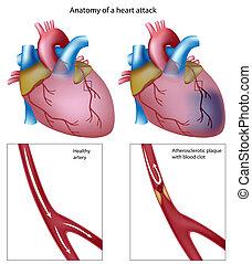 Herzinfarkt, Eps8
