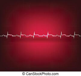 Herzinfarkt, Infarktkardiogramm