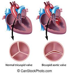 Herzklappenfehler, Eps8