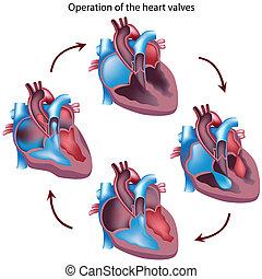 Herzklappenoperation