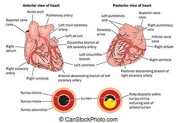 Herzleiden